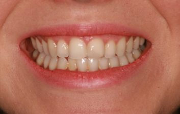 front-tooth-filling-after
