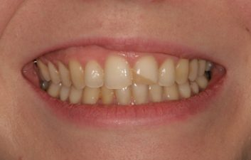 front tooth filling before