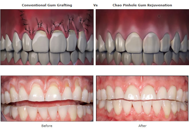 Receding Gums Before and After