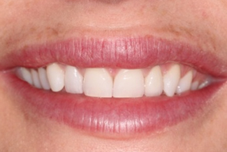 Gingival Recontouring After