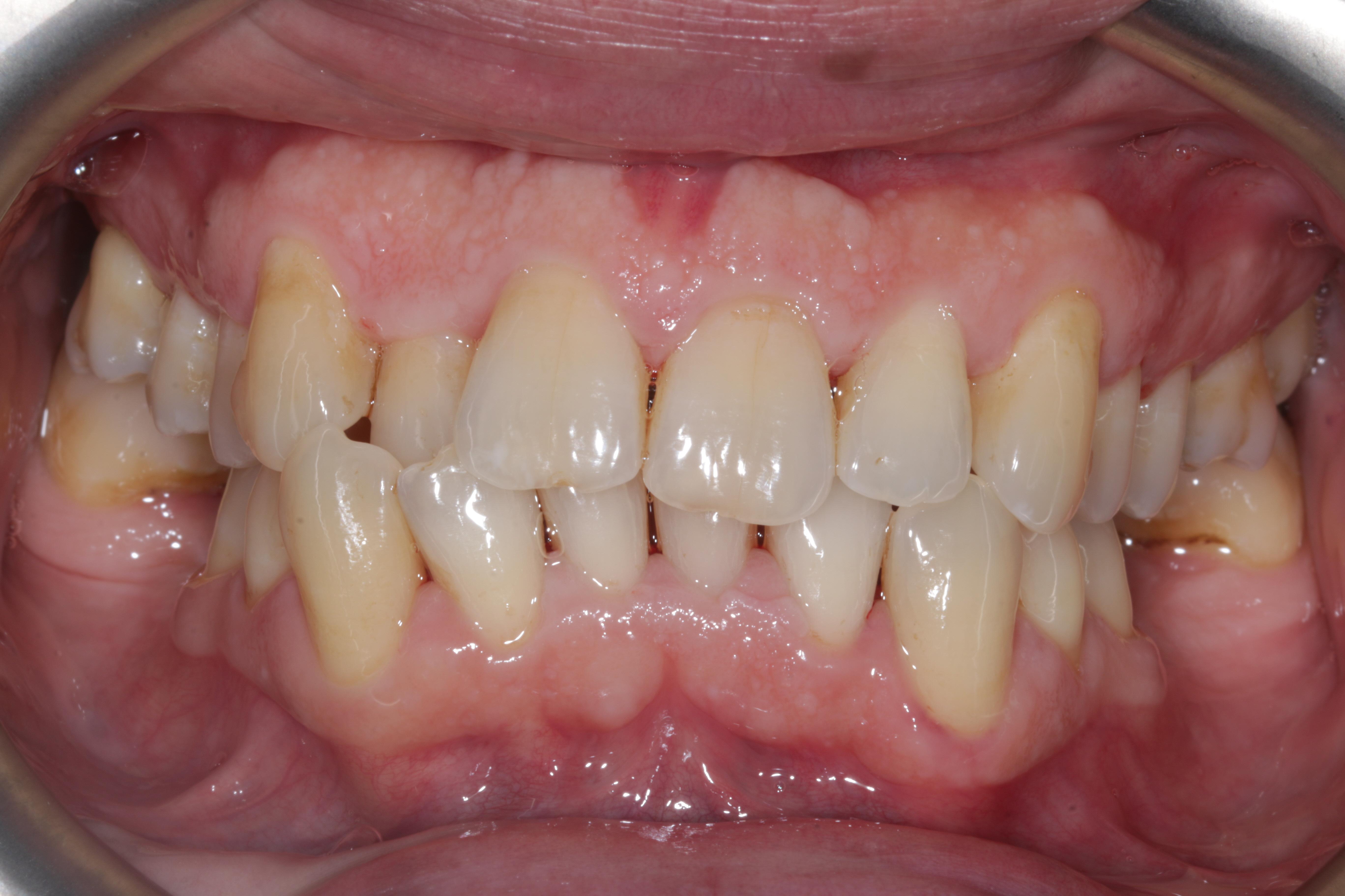 Dental_hygiene_london_after