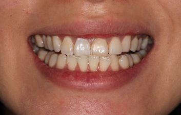 Internal tooth bleaching after