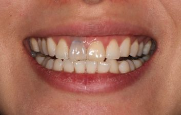 Internal tooth bleaching before