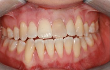 internal_bleaching_before