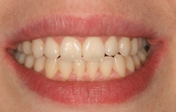 Invisalign_braces_london_after