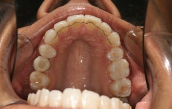 invisalign-dentist-london-after