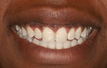 invisalign_london_after