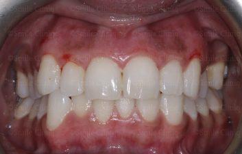 After gum laser depigmentation