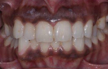 Before gum laser depigmentation