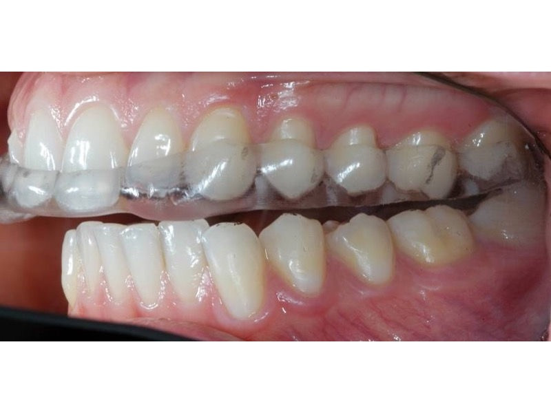 Tooth Surface Loss