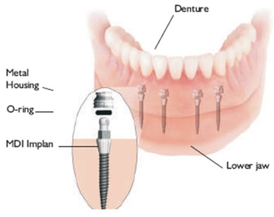 Mini Dental Implant