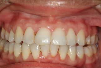 Orthodontics in London After