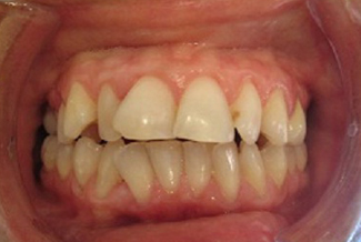 Orthodontics in London Before