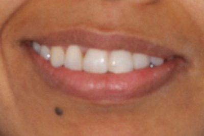 Teeth After Orthodontist Treatment