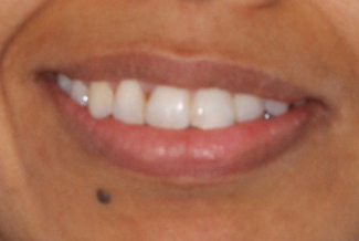 After orthodontic treatment