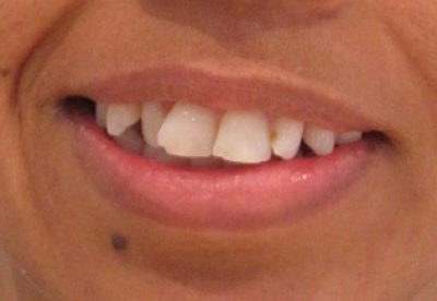Teeth Before Orthodontist Treatment