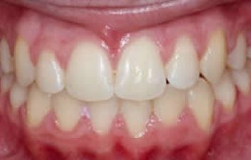 orthodontics_london_after