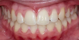 After Specialist orthodontic procedure
