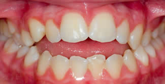 Before Specialist orthodontic procedure