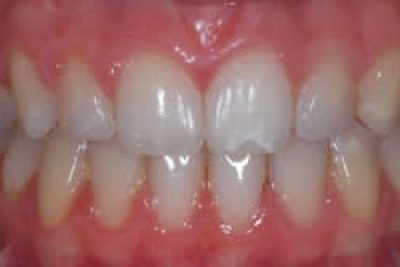 After Specialist Orthodontist Treatment in London