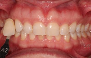 Enlighten Whitening London Dentist