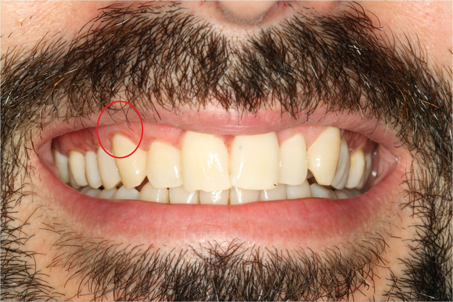 After treatment to receding gums in London