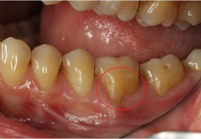Receding Gums Pin Hole Surgery & Soft Tissue Grafting In London