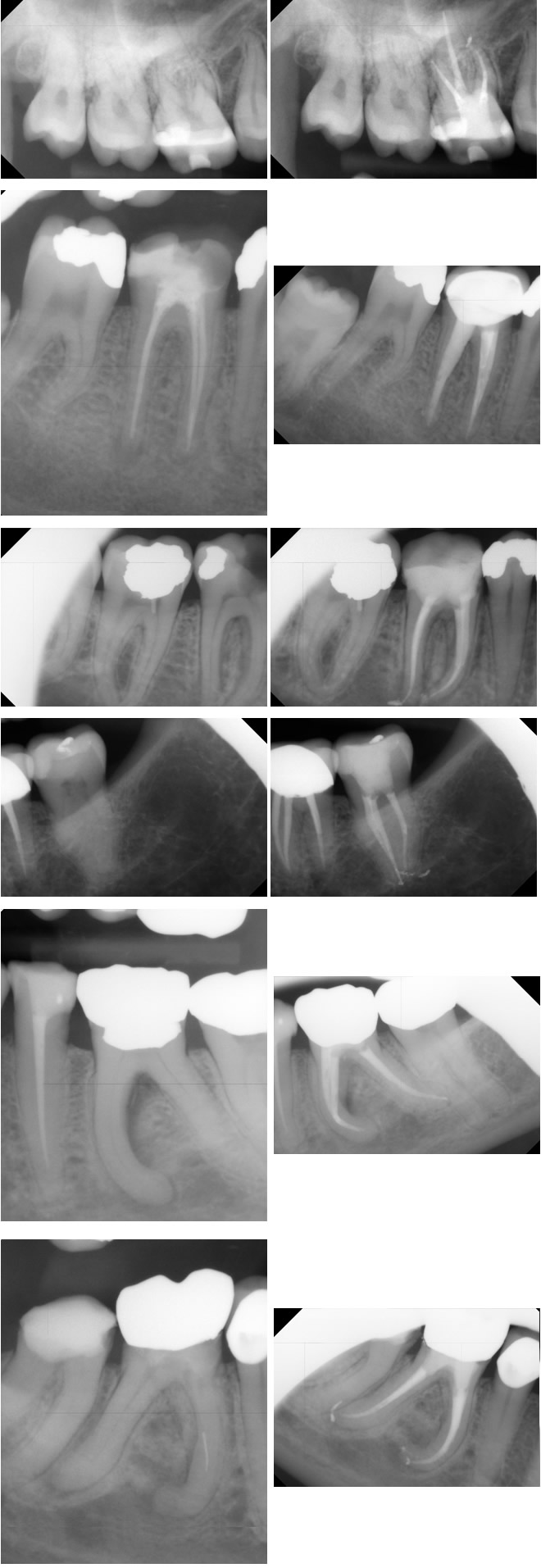 X ray of root canal