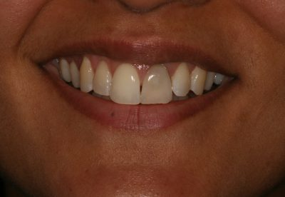 implant_london_before