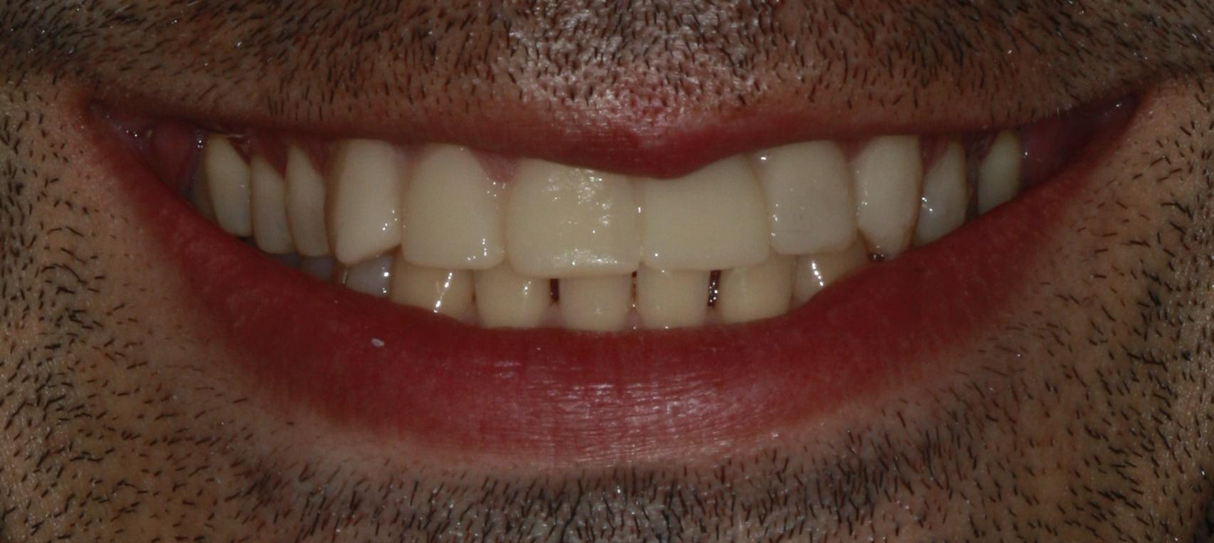 Dental Implants Crown After