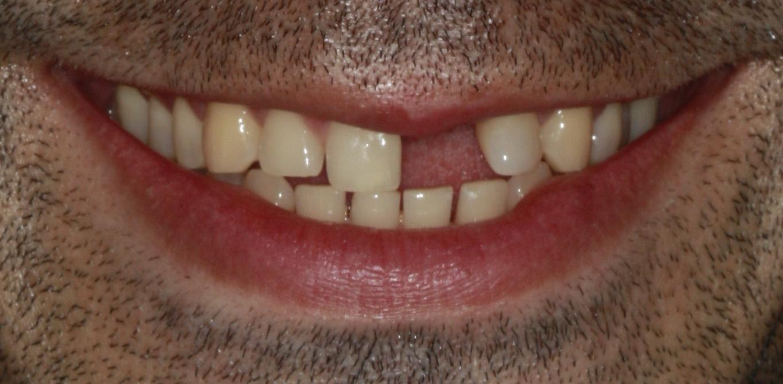 Dental Implants Crown Before