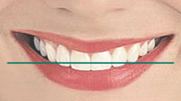 Horizontal smile line