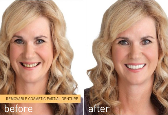 Before an after having Snap on Smile - Removable cosmetic partial denture
