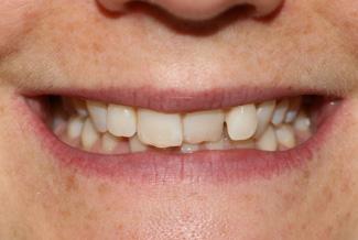 Teeth Before Inman Aligners
