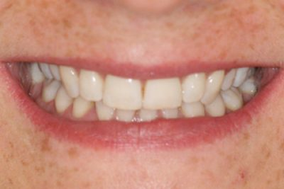 Teeth After Inman Aligners