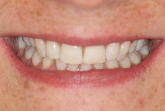 Teeth After Inman Aligners