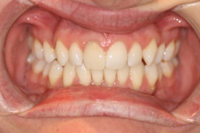 Tooth Whitening Treatment After