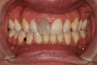 Tooth Whitening Treatment Before
