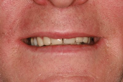 Tooth Wear After