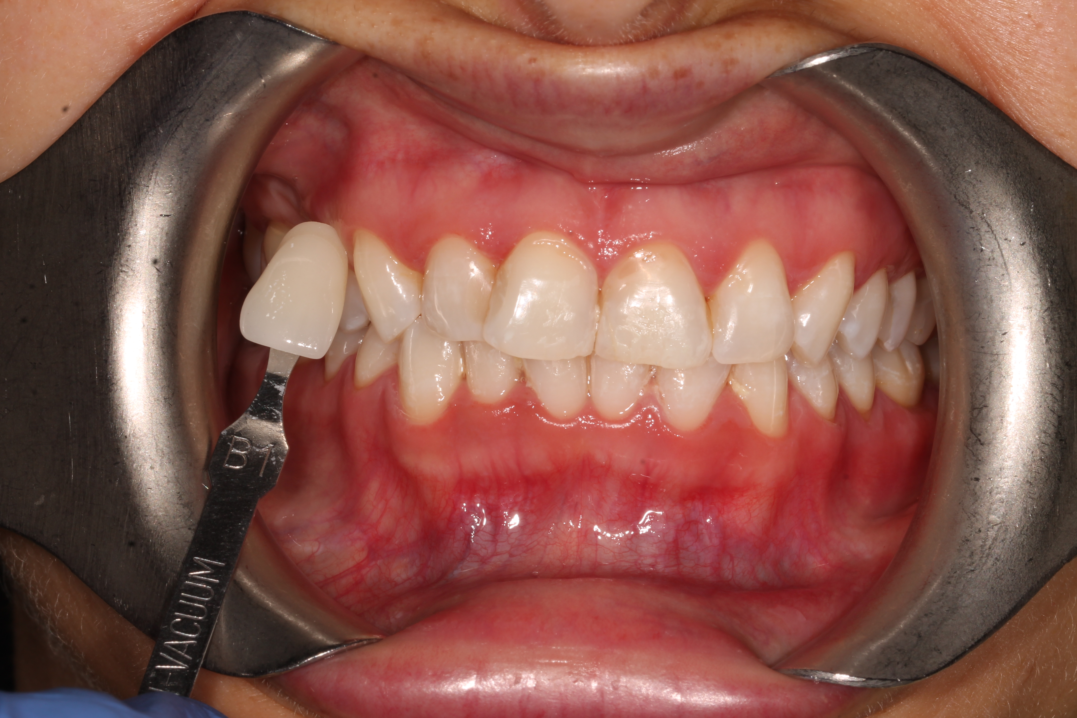 tooth_whitening_london_after