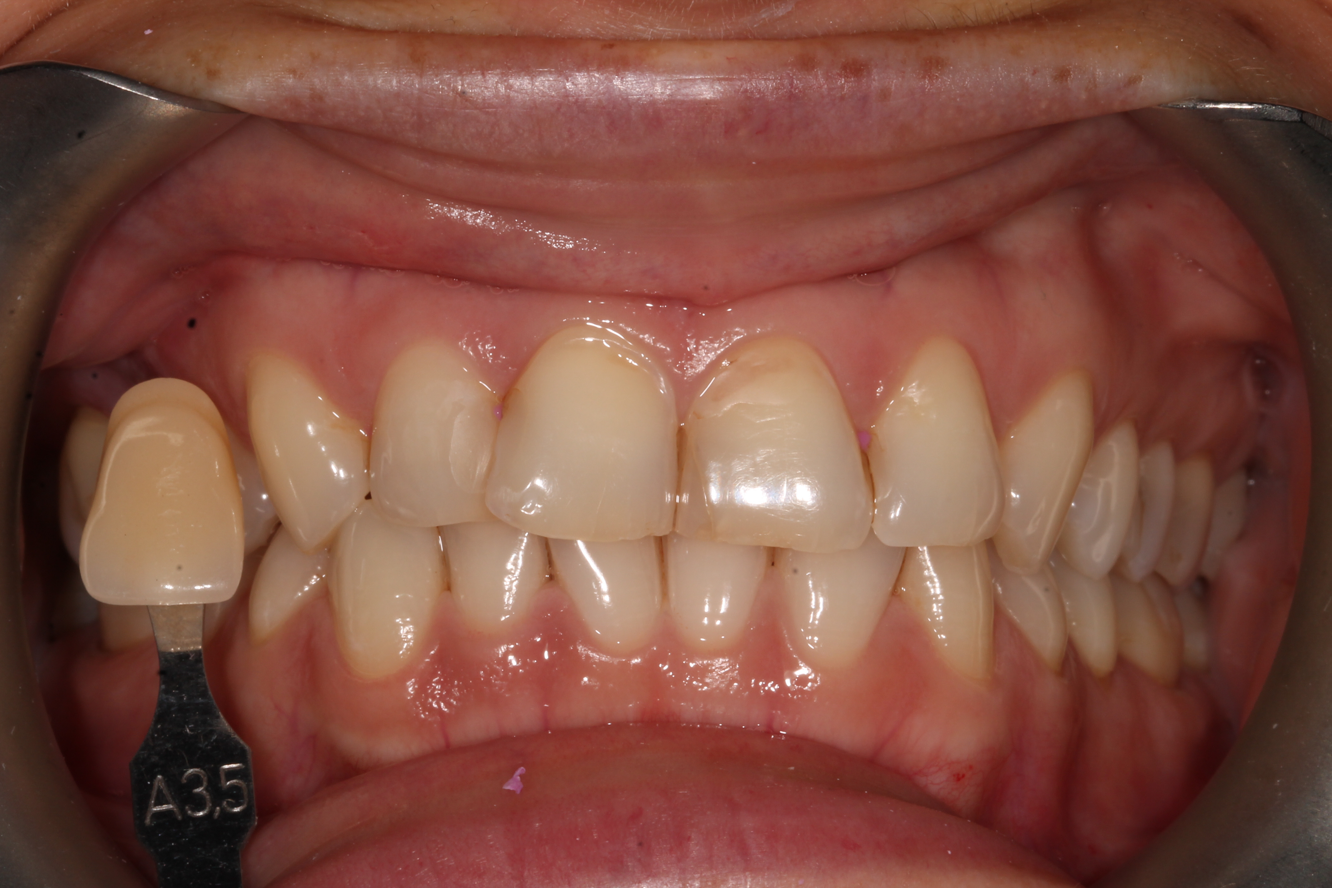 tooth_whitening_london_before