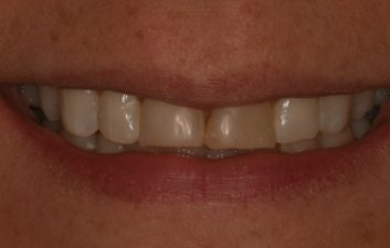 veneers_london_before