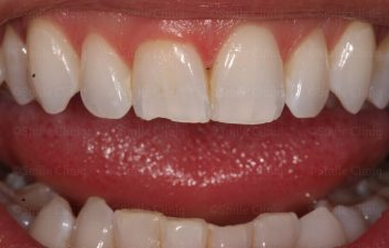 white tooth filling london before