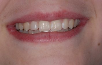 White fillings London after