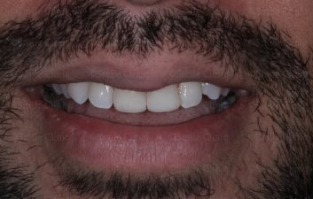 whitening and cosmetic bonding after