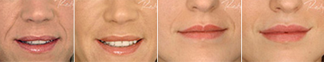 Dermal filler treatment