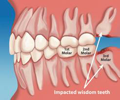 wisdom-tooth-extraction-london