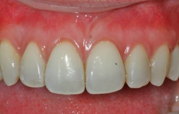 London Pinhole gum treatment after