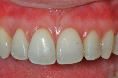 London Pinhole gum treatment after