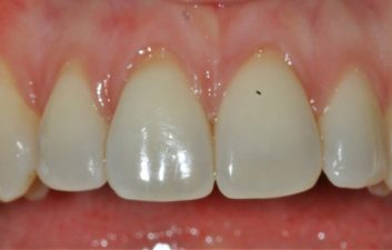 London Pinhole gum treatment before